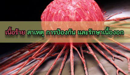เนื้อร้าย สาเหตุ การป้องกัน และรักษาเนื้องอก