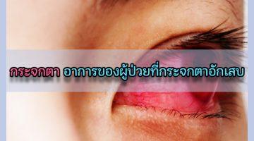 กระจกตา อาการของผู้ป่วยที่กระจกตาอักเสบ