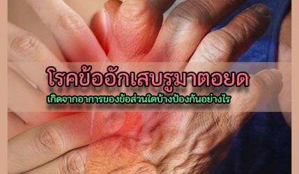 โรคข้ออักเสบรูมาตอยด์ เกิดจากอาการของข้อส่วนใดบ้างป้องกันอย่างไร