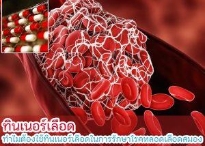 ทินเนอร์เลือด ทำไมต้องใช้ทินเนอร์เลือดในการรักษาโรคหลอดเลือดสมอง